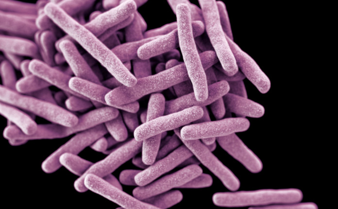 Микобактерия туберкулеза (палочка Коха)