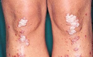 Псориатические бляшки на коленях