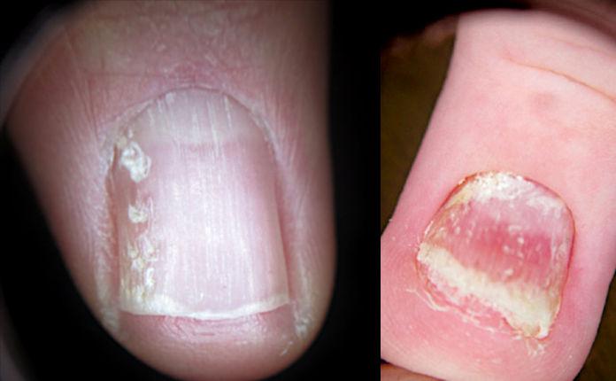 Крошащиеся ногти при псориазе