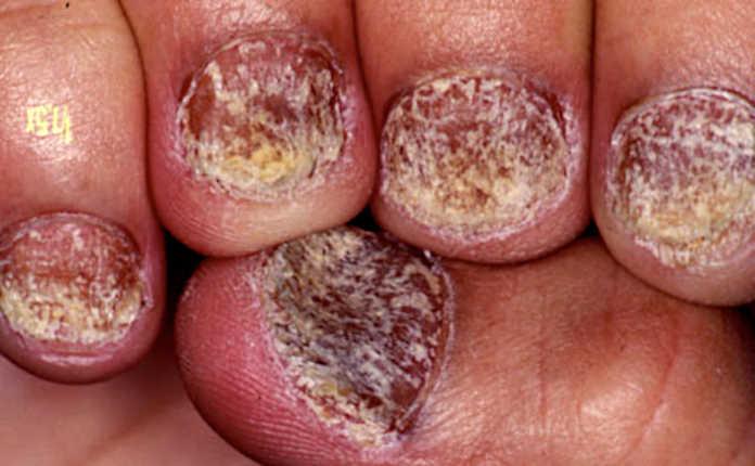 Псориаз на ногтях
