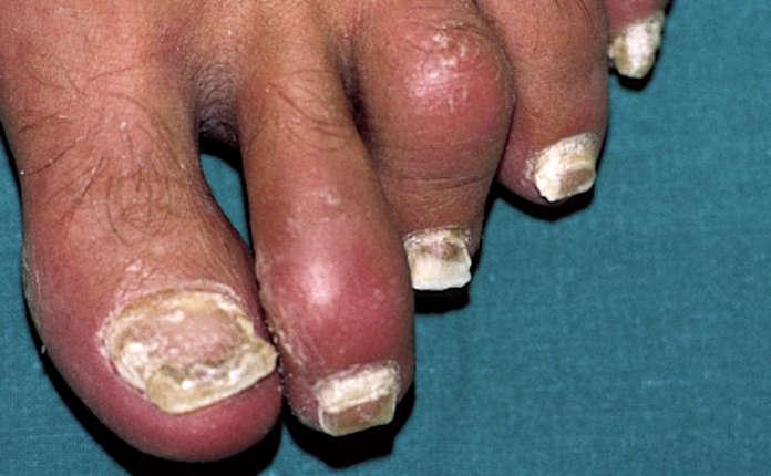 Псориаз ногтей и артрит