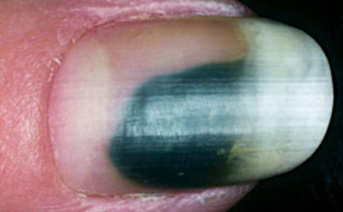 Инфекция в области онихолизиса