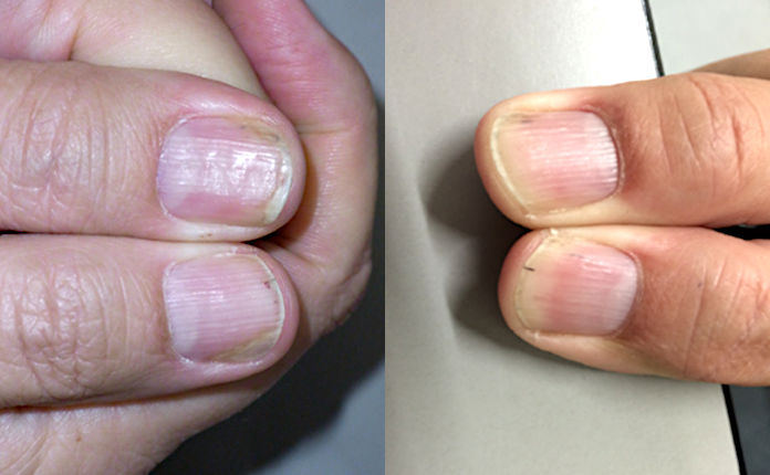 Лечение псориаза ногтей: системное биологическое средство адалимумаб  (рис. 4 из 4)
