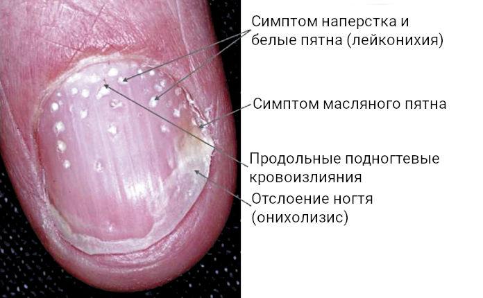 Частые проявления псориаза на ногтях