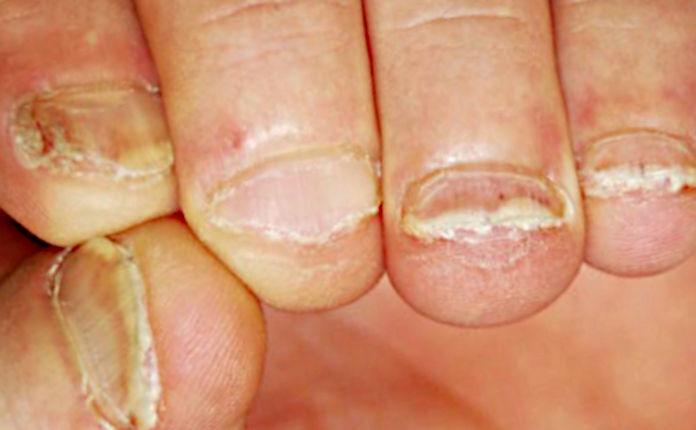 Феномен Кебнера у ребенка с привычкой грызть ногти
