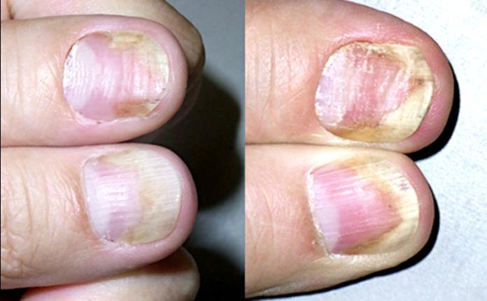 Лечение псориаза ногтей: гормон и аналог витамина Д наружно (рис. 1 из 4)