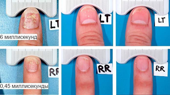 Результат лечения ногтевого псориаза импульсным лазером