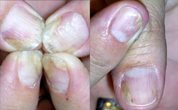 Лечение псориаза ногтей: местные гормональные инъекции (рис. 2 из 4)