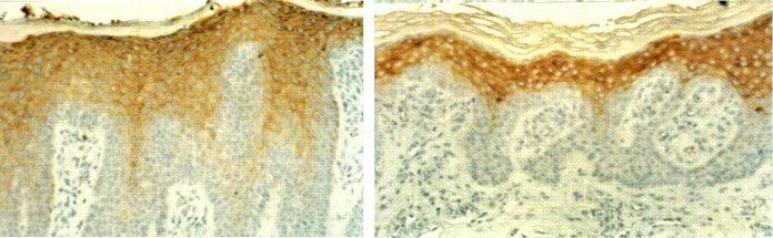 Кожа под микроскопом: до и после воздействия мочевины