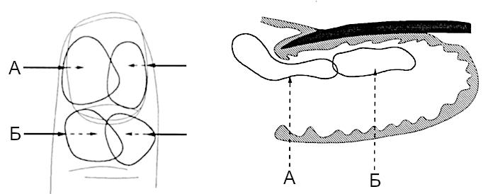 Схема. Местное введение гормонов
