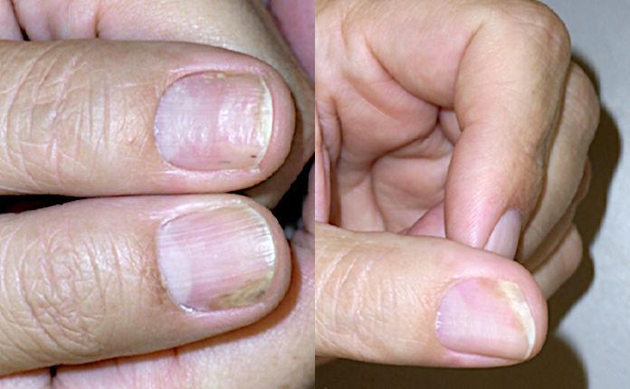 Лечение псориаза ногтей: системное традиционное средство метотрексат (рис. 3 из 4)