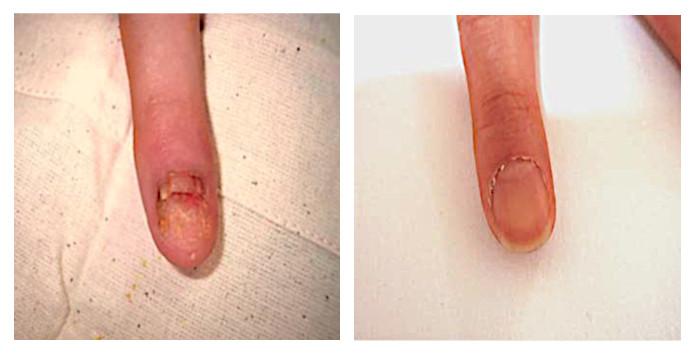 Улучшение состояния ногтя после местных инъекций метотрексата