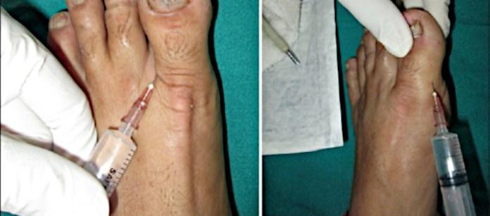 Анестезия большого пальца на ноге