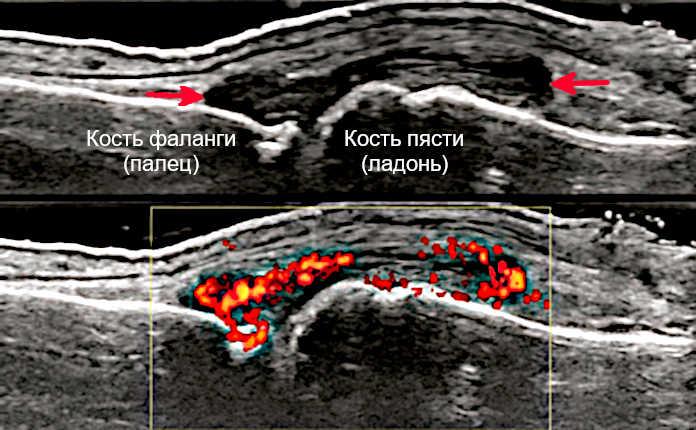 УЗИ псориатического артрита