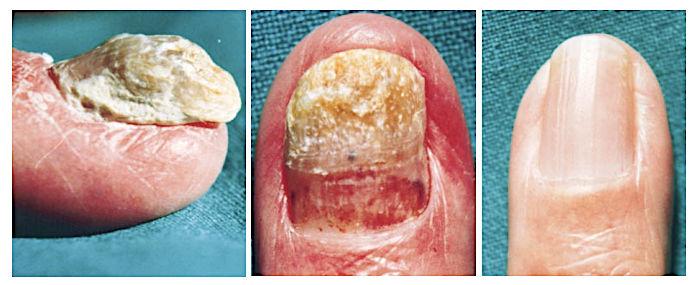 Утолщение ногтевой пластины прошло после местных инъекций гормонов