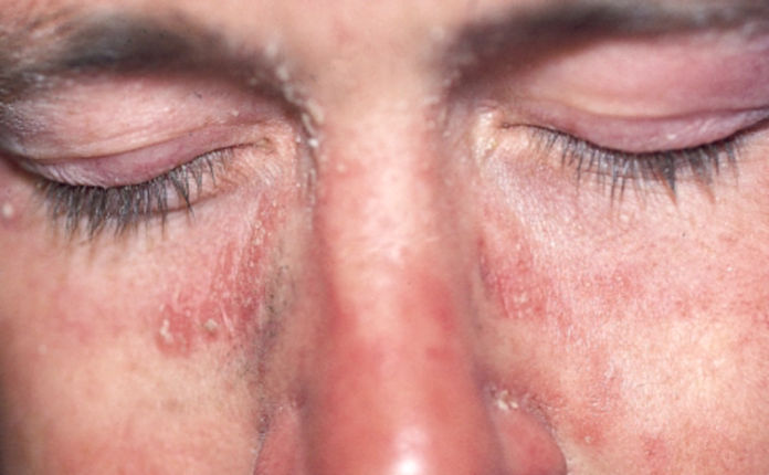 Себопсориаз на лице