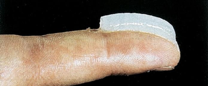 На кончик пальца помещается 0,5 г мази